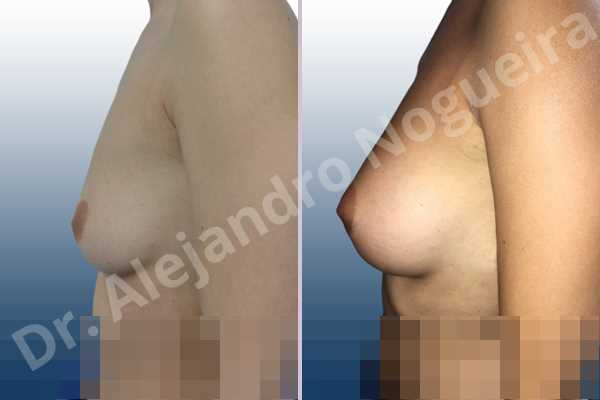 Asymmetric breasts,Empty breasts,Lateral breasts,Slightly saggy droopy breasts,Small breasts,Sunken chest,Too far apart wide cleavage breasts,Anatomical shape,Lower hemi periareolar incision,Subfascial pocket plane - photo 2