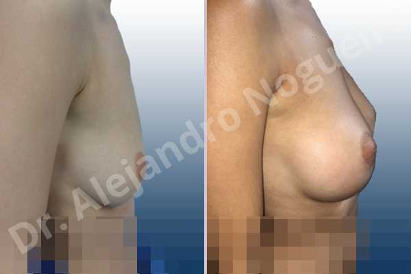 Asymmetric breasts,Empty breasts,Lateral breasts,Slightly saggy droopy breasts,Small breasts,Sunken chest,Too far apart wide cleavage breasts,Anatomical shape,Lower hemi periareolar incision,Subfascial pocket plane - photo 4