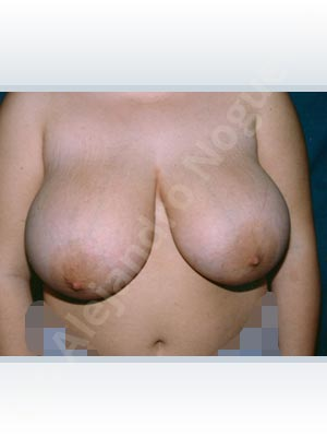 Asymmetric breasts,Extremely saggy droopy breasts,Large areolas,Lateral breasts,Pendulous breasts,Severely large breasts,Tuberous breasts,Anchor incision,Areola reduction,Double vertical pedicle