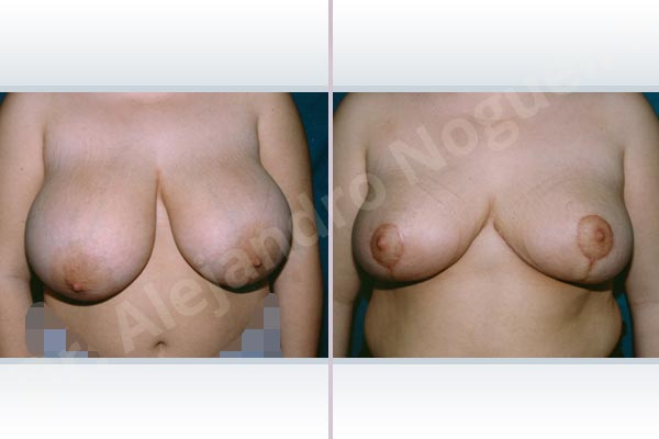 Asymmetric breasts,Breast tissues symmastia uniboob,Extremely saggy droopy breasts,Large areolas,Lateral breasts,Pendulous breasts,Severely large breasts,Tuberous breasts,Anchor incision,Areola reduction,Double vertical pedicle - photo 1