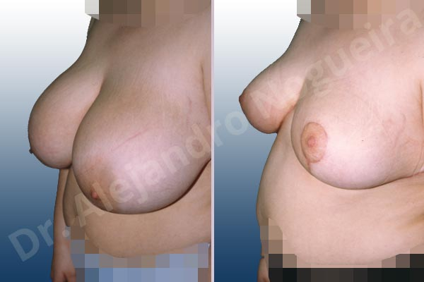 Asymmetric breasts,Breast tissues symmastia uniboob,Extremely saggy droopy breasts,Large areolas,Lateral breasts,Pendulous breasts,Severely large breasts,Tuberous breasts,Anchor incision,Areola reduction,Double vertical pedicle - photo 2