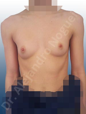 Asymmetric breasts,Empty breasts,Narrow breasts,Skinny breasts,Small breasts,Too far apart wide cleavage breasts,Anatomical shape,Inframammary incision,Subfascial pocket plane