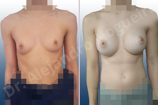 Asymmetric breasts,Empty breasts,Narrow breasts,Skinny breasts,Small breasts,Too far apart wide cleavage breasts,Anatomical shape,Inframammary incision,Subfascial pocket plane - photo 1