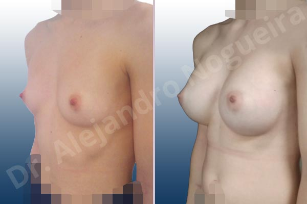 Asymmetric breasts,Empty breasts,Narrow breasts,Skinny breasts,Small breasts,Too far apart wide cleavage breasts,Anatomical shape,Inframammary incision,Subfascial pocket plane - photo 3