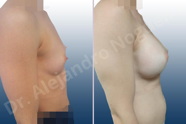 Asymmetric breasts,Empty breasts,Narrow breasts,Skinny breasts,Small breasts,Too far apart wide cleavage breasts,Anatomical shape,Inframammary incision,Subfascial pocket plane - photo 4