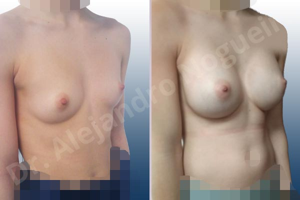 Asymmetric breasts,Empty breasts,Narrow breasts,Skinny breasts,Small breasts,Too far apart wide cleavage breasts,Anatomical shape,Inframammary incision,Subfascial pocket plane - photo 5