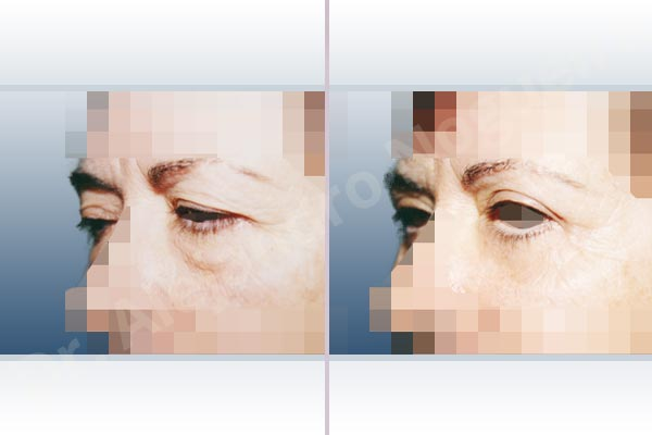 Baggy upper eyelids,Saggy upper eyelids,Upper eyelids ptosis,Baggy lower eyelids,Saggy lower eyelids,Upper eyelid fat bags resection,Upper eyelid skin and muscle resection,Lower eyelid fat bags resection,Lower eyelid skin and muscle resection,Subciliary approach incision - photo 2