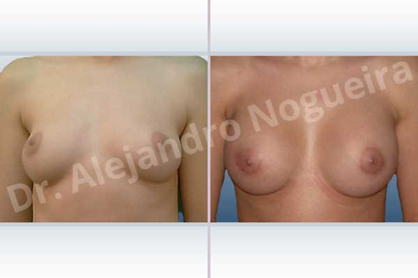 Asymmetric breasts,Cross eyed breasts,Lateral breasts,Small breasts,Too far apart wide cleavage breasts,Round shape,Lower hemi periareolar incision,Subfascial pocket plane - photo 1