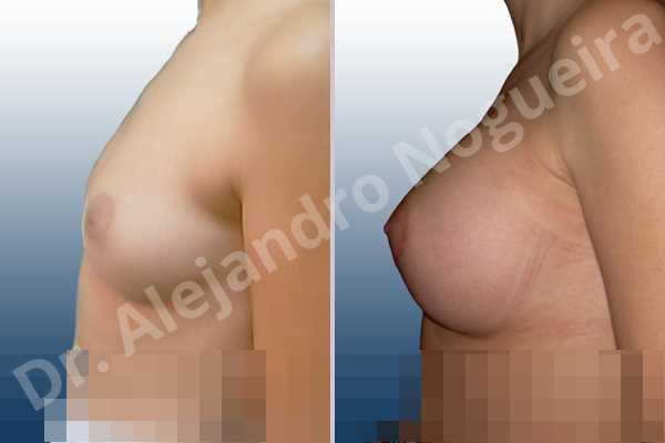 Asymmetric breasts,Cross eyed breasts,Lateral breasts,Small breasts,Too far apart wide cleavage breasts,Round shape,Lower hemi periareolar incision,Subfascial pocket plane - photo 2
