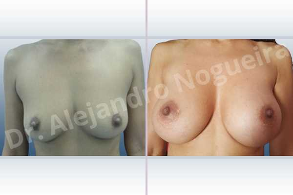 Cross eyed breasts,Empty breasts,Moderately saggy droopy breasts,Small breasts,Anatomical shape,Lower hemi periareolar incision,Subfascial pocket plane - photo 1