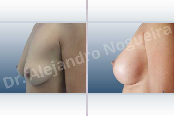 Cross eyed breasts,Empty breasts,Moderately saggy droopy breasts,Small breasts,Anatomical shape,Lower hemi periareolar incision,Subfascial pocket plane - photo 2