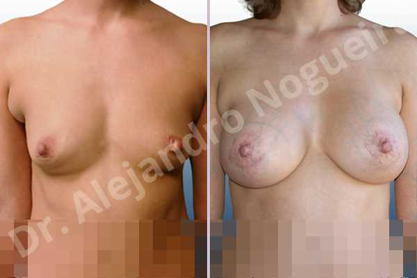 Asymmetric breasts,Cross eyed breasts,Empty breasts,Lateral breasts,Slightly saggy droopy breasts,Small breasts,Too far apart wide cleavage breasts,Tuberous breasts,Anatomical shape,Lower hemi periareolar incision,Subfascial pocket plane,Tuberous mammoplasty - photo 1