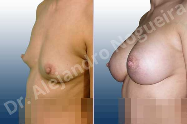 Asymmetric breasts,Cross eyed breasts,Empty breasts,Lateral breasts,Slightly saggy droopy breasts,Small breasts,Too far apart wide cleavage breasts,Tuberous breasts,Anatomical shape,Lower hemi periareolar incision,Subfascial pocket plane,Tuberous mammoplasty - photo 2