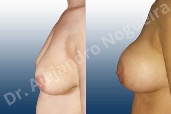 Empty breasts,Lateral breasts,Pendulous breasts,Severely saggy droopy breasts,Skinny breasts,Slightly large breasts,Too far apart wide cleavage breasts,Lower hemi periareolar incision,Round shape,Subfascial pocket plane - photo 2
