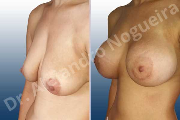 Empty breasts,Lateral breasts,Pendulous breasts,Severely saggy droopy breasts,Skinny breasts,Slightly large breasts,Too far apart wide cleavage breasts,Lower hemi periareolar incision,Round shape,Subfascial pocket plane - photo 3