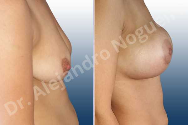 Empty breasts,Lateral breasts,Pendulous breasts,Severely saggy droopy breasts,Skinny breasts,Slightly large breasts,Too far apart wide cleavage breasts,Lower hemi periareolar incision,Round shape,Subfascial pocket plane - photo 4