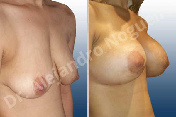 Empty breasts,Lateral breasts,Pendulous breasts,Severely saggy droopy breasts,Skinny breasts,Slightly large breasts,Too far apart wide cleavage breasts,Lower hemi periareolar incision,Round shape,Subfascial pocket plane - photo 5