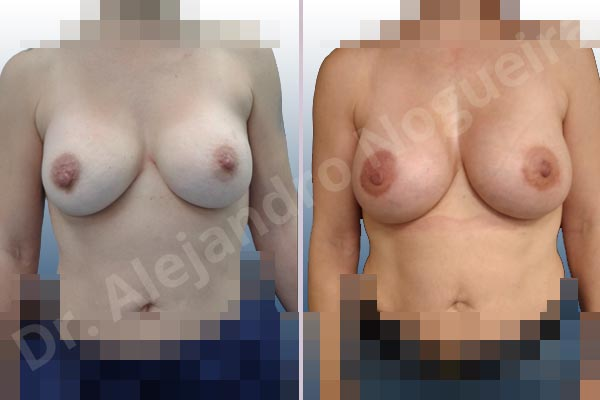Before & After Case LVR3RVRX