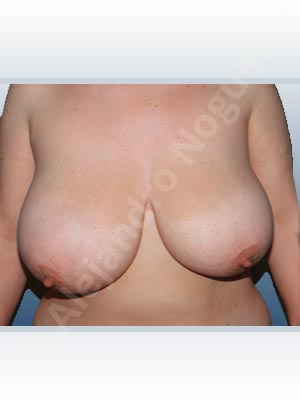 Asymmetric breasts,Breast tissues symmastia uniboob,Extremely large breasts,Extremely saggy droopy breasts,Severely large breasts,Severely saggy droopy breasts,Tuberous breasts,Anchor incision,Double vertical pedicle