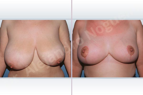 Asymmetric breasts,Breast tissues symmastia uniboob,Extremely large breasts,Extremely saggy droopy breasts,Severely large breasts,Severely saggy droopy breasts,Tuberous breasts,Anchor incision,Double vertical pedicle - photo 1