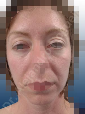 Deep nasolabial folds,Droopy cheeks,Droopy eyebrows,Droopy face,Droopy forehead,Small chin,Upper eyelids ptosis,Weak chin,Horizontal chin osteotomy,One dimensional genioplasty,Osseous chin advancement,Short temporal incisions supraperiosteal extended lift of the upper two thirds of the face