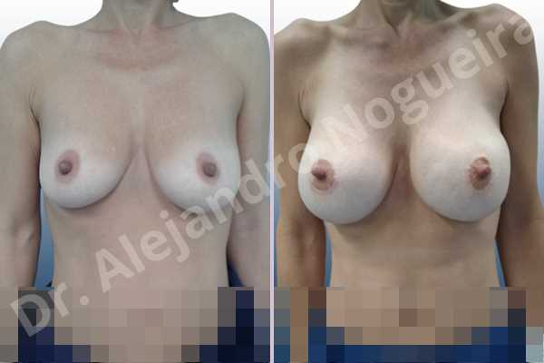 Asymmetric breasts,Empty breasts,Mildly saggy droopy breasts,Pendulous breasts,Skinny breasts,Small breasts,Sunken chest,Anatomical shape,Lower hemi periareolar incision,Subfascial pocket plane - photo 1