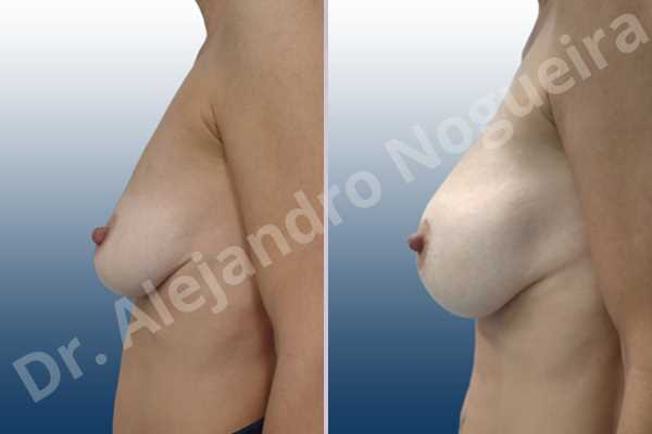 Asymmetric breasts,Empty breasts,Mildly saggy droopy breasts,Pendulous breasts,Skinny breasts,Small breasts,Sunken chest,Anatomical shape,Lower hemi periareolar incision,Subfascial pocket plane - photo 2
