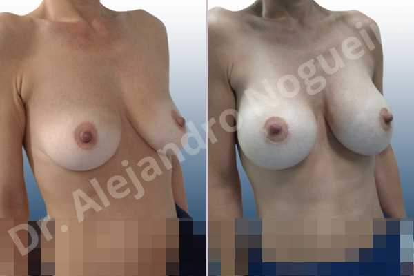 Asymmetric breasts,Empty breasts,Mildly saggy droopy breasts,Pendulous breasts,Skinny breasts,Small breasts,Sunken chest,Anatomical shape,Lower hemi periareolar incision,Subfascial pocket plane - photo 5