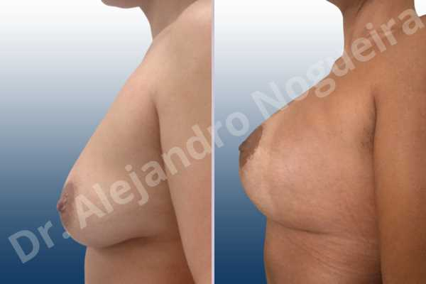 Asymmetric breasts,Empty breasts,Mildly saggy droopy breasts,Small breasts,Wide breasts,Tuberous breasts,Anatomical shape,Lollipop incision,Subfascial pocket plane,Superior pedicle - photo 2