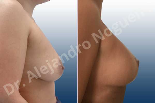 Asymmetric breasts,Empty breasts,Mildly saggy droopy breasts,Small breasts,Wide breasts,Tuberous breasts,Anatomical shape,Lollipop incision,Subfascial pocket plane,Superior pedicle - photo 4