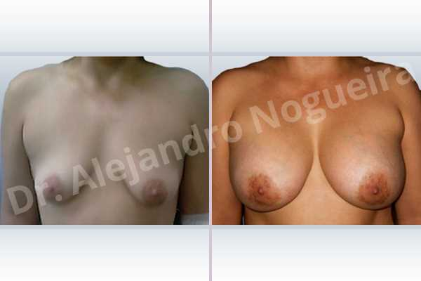 Asymmetric breasts,Empty breasts,Moderately saggy droopy breasts,Narrow breasts,Pendulous breasts,Severely saggy droopy breasts,Small breasts,Sunken chest,Too far apart wide cleavage breasts,Tuberous breasts,Anatomical shape,Lower hemi periareolar incision,Subfascial pocket plane,Tuberous mammoplasty - photo 1