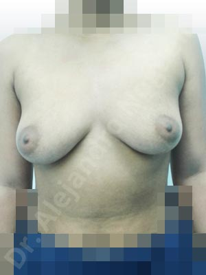 Asymmetric breasts,Empty breasts,Lateral breasts,Mildly saggy droopy breasts,Moderately saggy droopy breasts,Small breasts,Too far apart wide cleavage breasts,Wide breasts,Anatomical shape,Lower hemi periareolar incision,Subfascial pocket plane