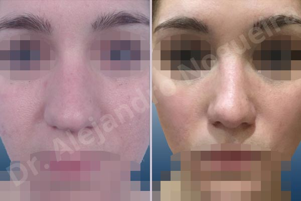 Alar flaring,Alar rim retraction,Asymmetric tip,Bifid columella,Bifid tip,Boxy tip,Broad dorsum,Broad nose,Bulbous tip,Concave lateral cruras,Congenital nose,Crooked tip,Droopy tip,Dynamic alar flaring,Flat dorsum,High dorsum,Humpless dorsum,Large alar cartilages,Nasal valve collapse,Plunging tip deformity,Poorly supported tip,Thick skin nose,Tip bossae,Custom made tip graft,Dorsum plateau resection,Ear cartilage graft harvesting,Intercrural columella plasty sutures,Interdomal tip plasty sutures,Lateral cruras custom made graft,Lateral cruras replacement graft,Lateral cruras repositioning,Nasal bones osteotomies,Open approach incision,Shield tip graft,Tip defatting,Tip replacement graft,Transdomal tip plasty sutures