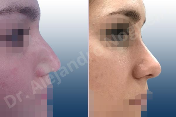 Alar flaring,Alar rim retraction,Asymmetric tip,Bifid columella,Bifid tip,Boxy tip,Broad dorsum,Broad nose,Bulbous tip,Concave lateral cruras,Congenital nose,Crooked tip,Droopy tip,Dynamic alar flaring,Flat dorsum,High dorsum,Humpless dorsum,Large alar cartilages,Nasal valve collapse,Plunging tip deformity,Poorly supported tip,Thick skin nose,Tip bossae,Custom made tip graft,Dorsum plateau resection,Ear cartilage graft harvesting,Intercrural columella plasty sutures,Interdomal tip plasty sutures,Lateral cruras custom made graft,Lateral cruras replacement graft,Lateral cruras repositioning,Nasal bones osteotomies,Open approach incision,Shield tip graft,Tip defatting,Tip replacement graft,Transdomal tip plasty sutures - photo 15