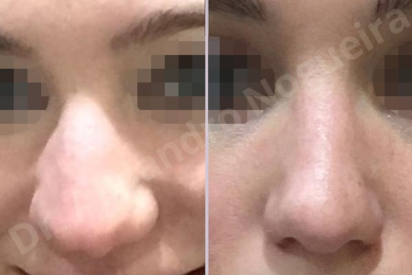 Alar flaring,Alar rim retraction,Asymmetric tip,Bifid columella,Bifid tip,Boxy tip,Broad dorsum,Broad nose,Bulbous tip,Concave lateral cruras,Congenital nose,Crooked tip,Droopy tip,Dynamic alar flaring,Flat dorsum,High dorsum,Humpless dorsum,Large alar cartilages,Nasal valve collapse,Plunging tip deformity,Poorly supported tip,Thick skin nose,Tip bossae,Custom made tip graft,Dorsum plateau resection,Ear cartilage graft harvesting,Intercrural columella plasty sutures,Interdomal tip plasty sutures,Lateral cruras custom made graft,Lateral cruras replacement graft,Lateral cruras repositioning,Nasal bones osteotomies,Open approach incision,Shield tip graft,Tip defatting,Tip replacement graft,Transdomal tip plasty sutures - photo 5