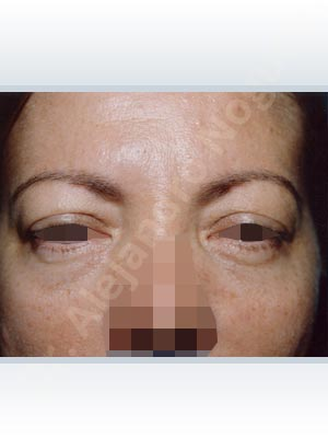 Droopy eyebrows,Droopy forehead,Upper eyelids ptosis,Short temporal incisions supraperiosteal extended lift of the upper two thirds of the face