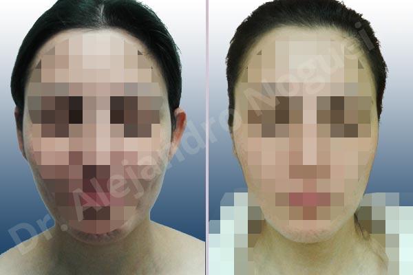 Before & After Case N6EMB9ET