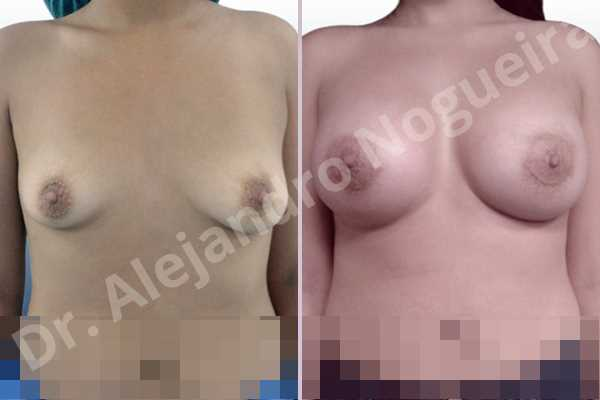 Empty breasts,Lateral breasts,Slightly saggy droopy breasts,Small breasts,Too far apart wide cleavage breasts,Wide breasts,Anatomical shape,Lower hemi periareolar incision,Subfascial pocket plane - photo 1