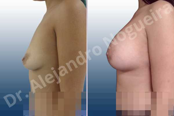 Empty breasts,Lateral breasts,Slightly saggy droopy breasts,Small breasts,Too far apart wide cleavage breasts,Wide breasts,Anatomical shape,Lower hemi periareolar incision,Subfascial pocket plane - photo 2