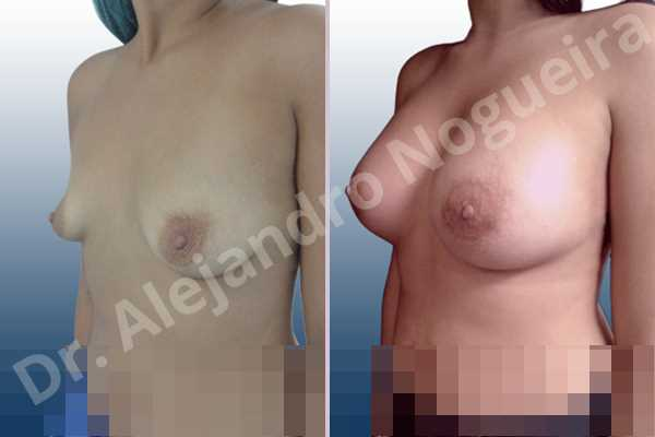 Empty breasts,Lateral breasts,Slightly saggy droopy breasts,Small breasts,Too far apart wide cleavage breasts,Wide breasts,Anatomical shape,Lower hemi periareolar incision,Subfascial pocket plane - photo 3