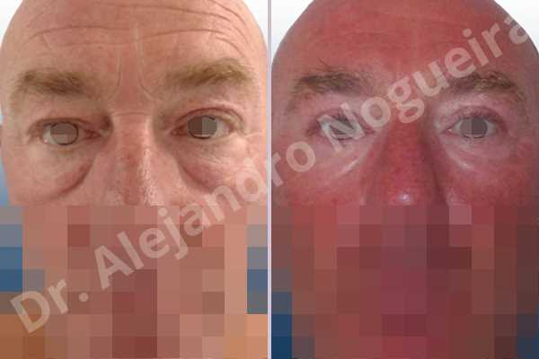 Baggy lower eyelids,Saggy upper eyelids,Upper eyelids ptosis,Lower eyelid fat bags resection,Transconjunctival approach incision,Upper eyelid skin and muscle resection - photo 1
