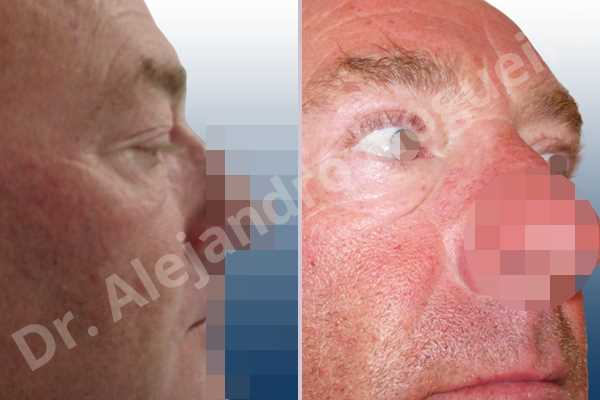 Before & After Case NDIHATTZ