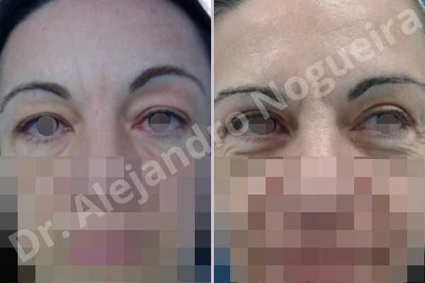 Baggy upper eyelids,Saggy upper eyelids,Upper eyelid fat bags resection,Upper eyelid skin and muscle resection - photo 1