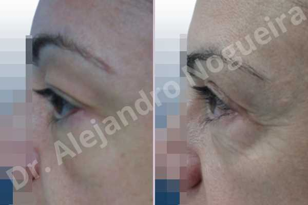 Baggy upper eyelids,Saggy upper eyelids,Upper eyelid fat bags resection,Upper eyelid skin and muscle resection - photo 3