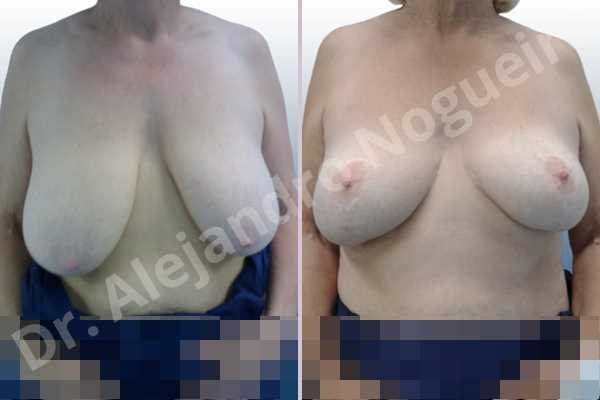 Asymmetric breasts,Breast tissue bottoming out,Cross eyed breasts,Extremely saggy droopy breasts,Lateral breasts,Moderately large breasts,Pendulous breasts,Pigeon chest,Too far apart wide cleavage breasts,Wide breasts,Tuberous breasts,Anchor incision,Double vertical pedicle - photo 1