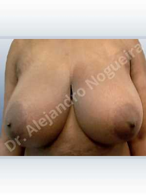 Asymmetric breasts,Extremely large breasts,Extremely saggy droopy breasts,Large areolas,Lateral breasts,Wide breasts,Anchor incision,Double vertical pedicle