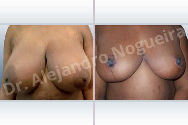 Asymmetric breasts,Extremely large breasts,Extremely saggy droopy breasts,Large areolas,Lateral breasts,Wide breasts,Anchor incision,Double vertical pedicle - photo 1