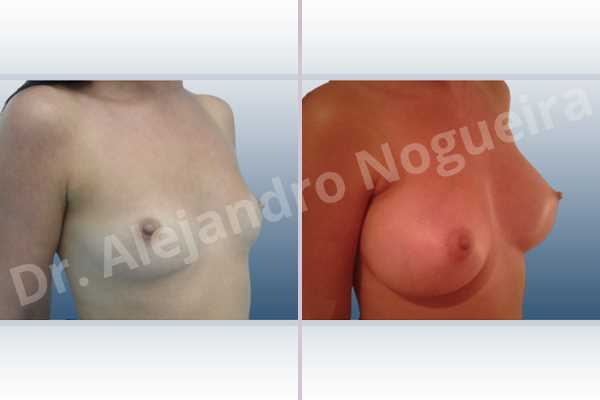 Cross eyed breasts,Empty breasts,Lateral breasts,Narrow breasts,Skinny breasts,Small breasts,Sunken chest,Too far apart wide cleavage breasts,Anatomical shape,Inframammary incision,Subfascial pocket plane - photo 5