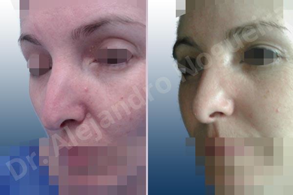Before & After Case NYACZ3KK