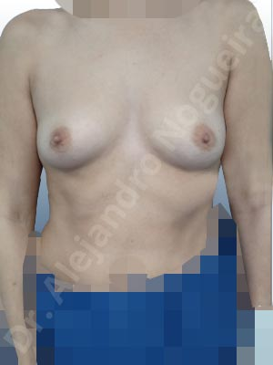 Asymmetric breasts,Empty breasts,Slightly saggy droopy breasts,Small breasts,Wide breasts,Anatomical shape,Lower hemi periareolar incision,Subfascial pocket plane
